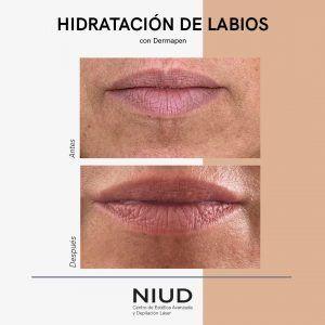 hidratacion labios dermapen